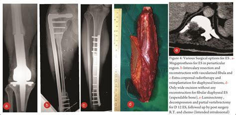 Ewing Sarcoma: Focus on Surgical Management – Journal of