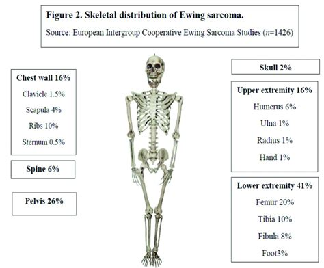 Ewing Sarcoma: Focus on Medical Management – Journal of
